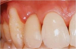protetika-zubni-implant-posle-kolmident-net