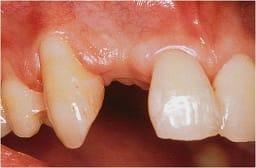 protetika-zubni-implant-pre-kolmident-net